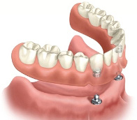A diagram depicting the way implant-supported dentures attach to two dental implants placed towards the front of the jaw.