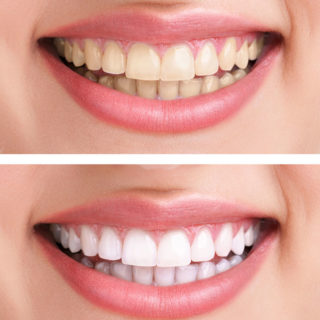 A comparison photo showing how yellow and dark teeth look before having teeth whitening, and then the brighter tooth color that results from the treatment.