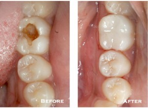 Before and after photographs placed side by side show the difference that white fillings can make. The left image shows a tooth with a large area of decay, and the right image shows the same tooth has been made whole again after placing a composite filling.