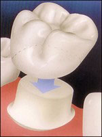 An illustration depicting the way porcelain crowns fit over prepared teeth.